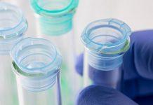 هزینه و نحوه انجام آزمایشات ژنتیک قبل از بارداری