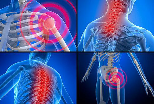 فیبرومیالژیا چیست، چه علائمی دارد و چگونه درمان می شود؟