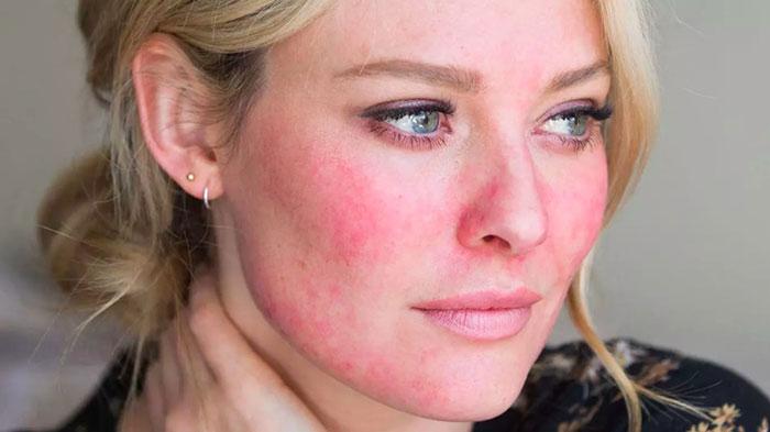 عکس بیماری پوستی روزاسه