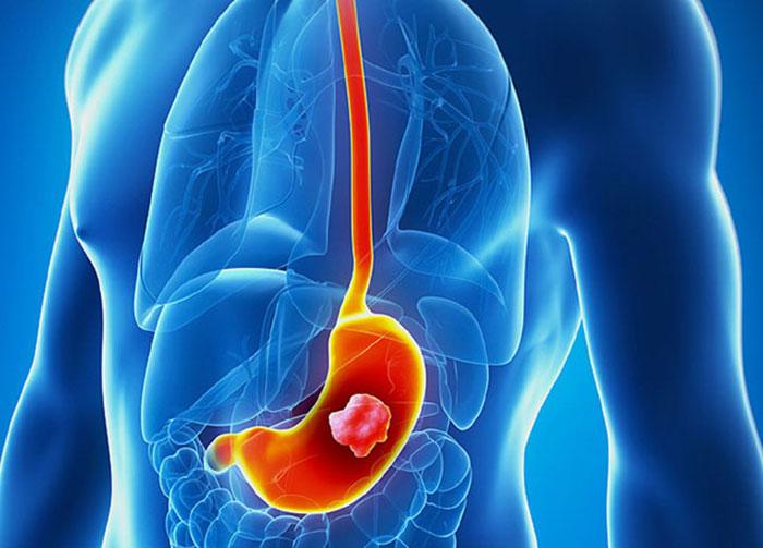 علائم و درمان سرطان معده چیست