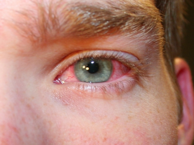 علائم بیماری چشمی