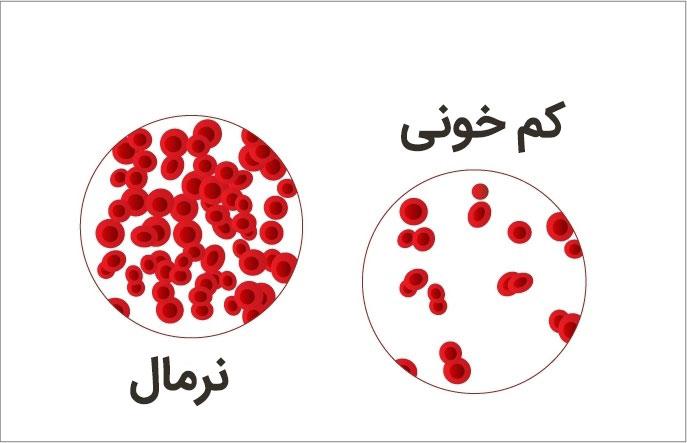 کم خونی یا آنمی