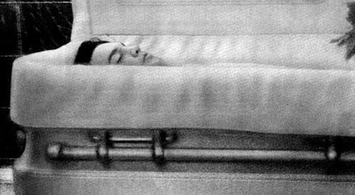 علت مرگ الویس پریسلی