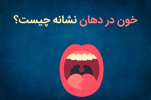 علت طعم و بوی خون در دهان