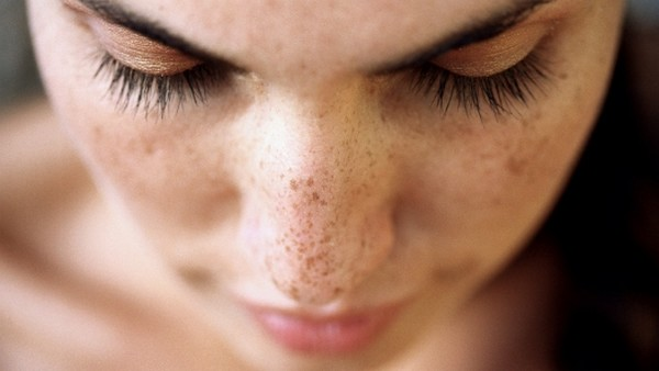 انواع لکه ها و خال های پوستی