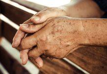 روش های درمان و رفع لکه های قهوه ای روی پوست دست