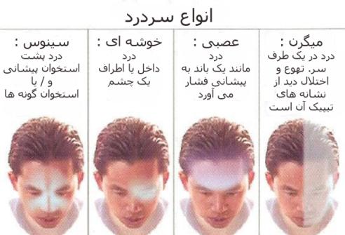 انواع سردرد و علت و راه های درمان آن ها