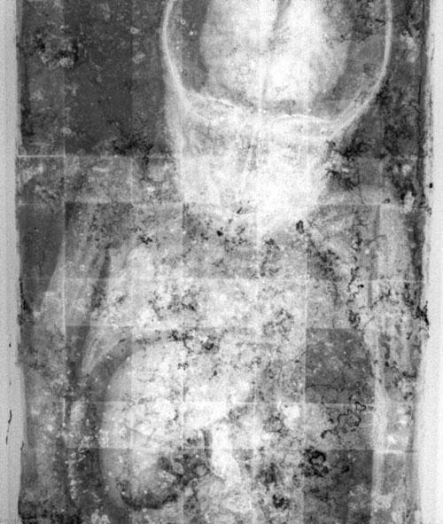 در تصویر اشعه ایکس رزالیا، قلب و کبدش قابل تشخیص هستند.