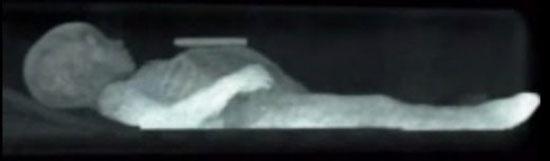تصویر اشعه ایکس حالت دست ها و پاهای زیبای خفته را نشان می دهند.