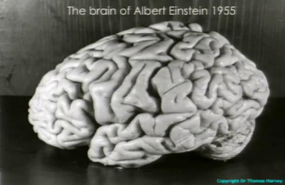مغز اینشتین