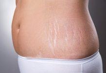 درمان های خانگی و قطعی استرچ مارک و ترک های پوستی