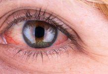 قرمزی چشم چیست؟