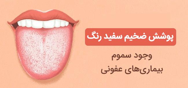 پوشش سفید روی زبان نشانه وجود سم و بیماری های عفونی