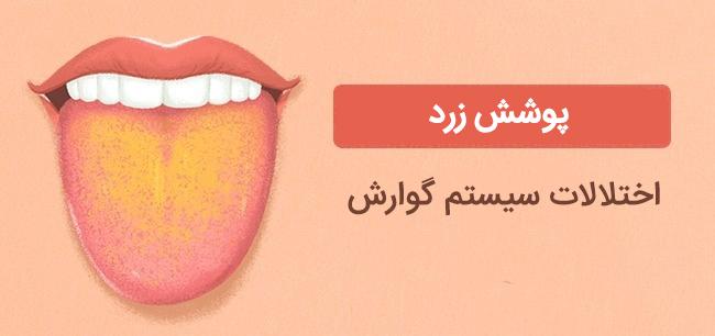 پوشش زرد روی زبان نشانه اختلالات سیستم گوارش