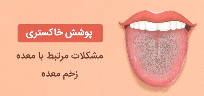 پوشش خاکستری روی زبان نشانه مشکلات معده و زخم معده