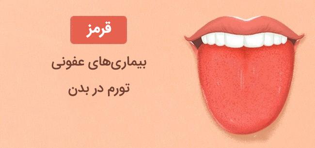 رنگ زبان قرمز نشانه بیماری های عفونی تورم در بدن