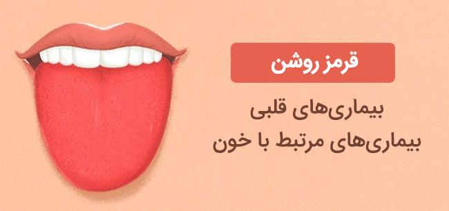 رنگ زبان قرمز روشن نشانه بیماری های قلبی و خون