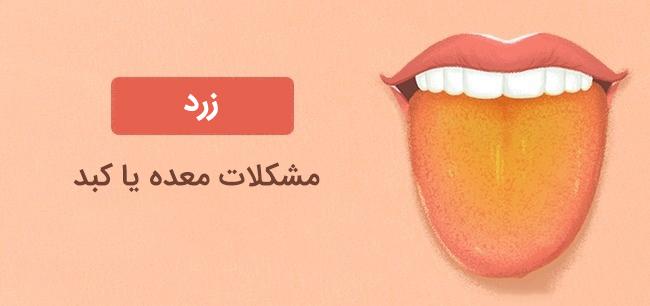 رنگ زبان زرد نشانه مشکلات معده و کبد