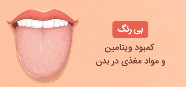 بی رنگی زبان نشانه کمبود ویتامین و مواد مغذی در بدن