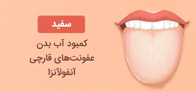 رنگ زبان سفید نشانه کمبود آب در بدن، عفونت های قارچی و آنفولانزا