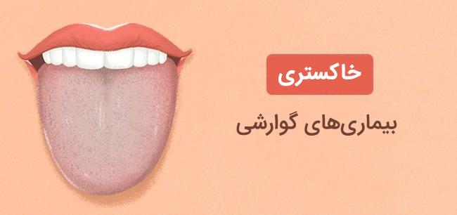 رنگ زبان خاکستری نشانه بیماری های گوراشی