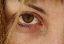 رفع لکه های قهوه ای صورت و بینی