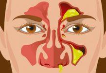 تشخیص سرماخوردگی
