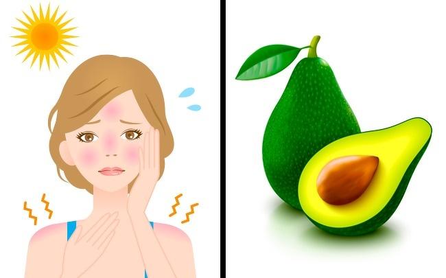 درمان آفتاب سوختگی : ماسک آووکادو
