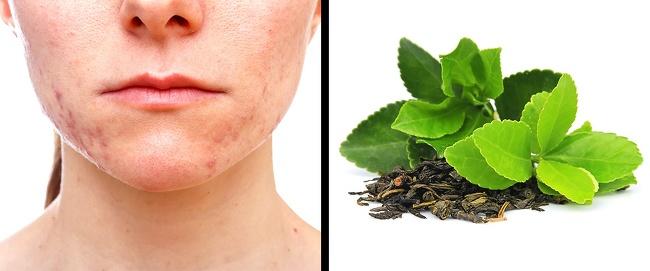 درمان جای جوش : ماسک چای سبز