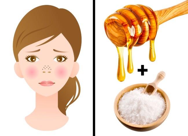 درمان منافذ باز پوست : ماسک عسل و نمک دریا