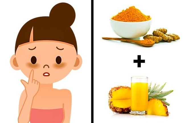 درمان سیاهی دور چشم : ماسک زردچوبه و آب آناناس