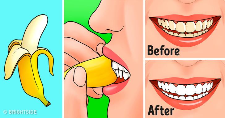 پوست موز و سفیدی دندان
