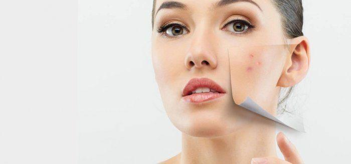 درمان سریع جوش صورت با ماسک های خانگی
