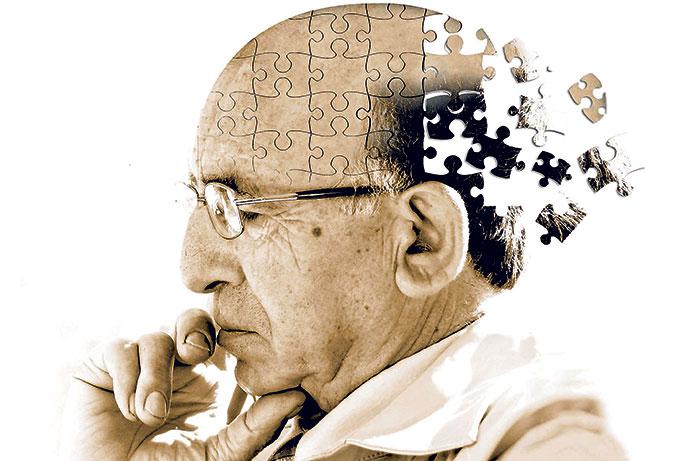 علت آلزایمر چیست؟