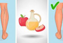 درمان واریس پا و رگ های عنکبوتی با سرکه سیب