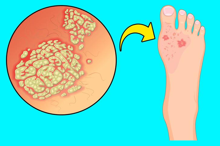 بیماری و قارچ پای ورزشکاران