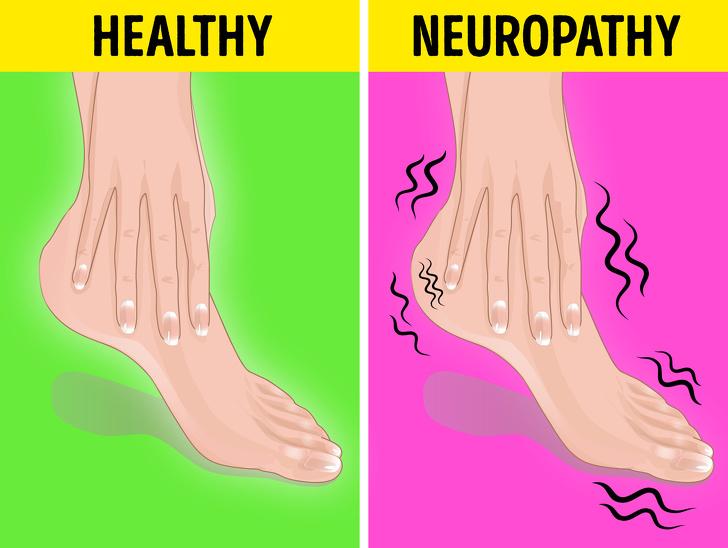 بی حسی پاها نشانه چیست