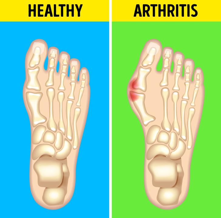 بیماری های شایع پا؛ آرتریت روماتوئید