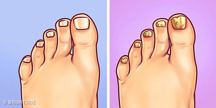 زرد شدن ناخن پا نشانه چیست