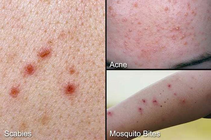 تصاویر بیماری گال