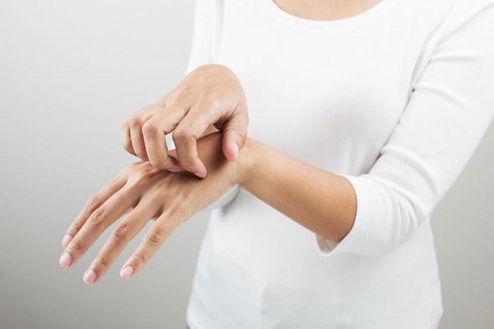 درمان خانگی و گیاهی بیماری گال یا جرب