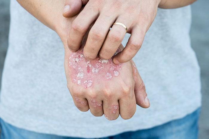 عکس و درمان گیاهی و طبیعی قارچ پوستی