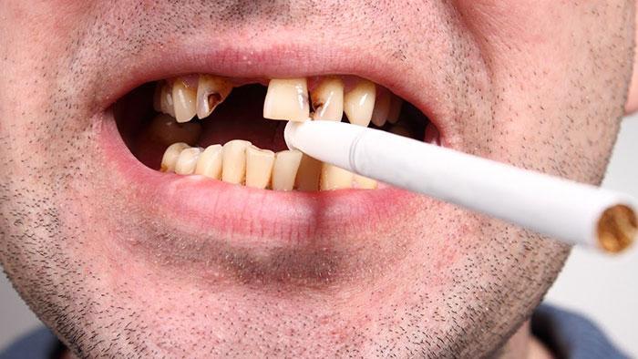 مضرات سیگار برای دهان و دندان