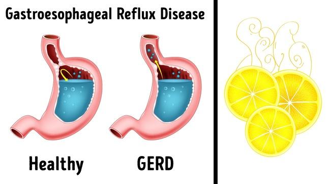رفلاکس معده یا سوزش سر دل - بوی ترشی