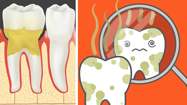 بیماری پیوره یا پیرا دندان آماس - بوی پوسیدگی دندان