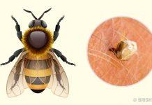 جای نیش زنبور عسل