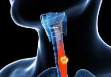 علائم و درمان سرطان مری