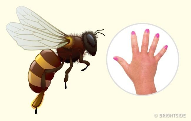 جای نیش زنبور سرخ یا زنبور گاوی