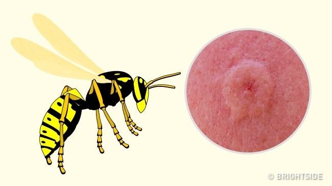جای نیش زنبور بی عسل