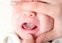 عکس برفک دهان نوزادان